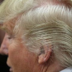 Donald Trumps Bizarre Hairdo Finally Explained